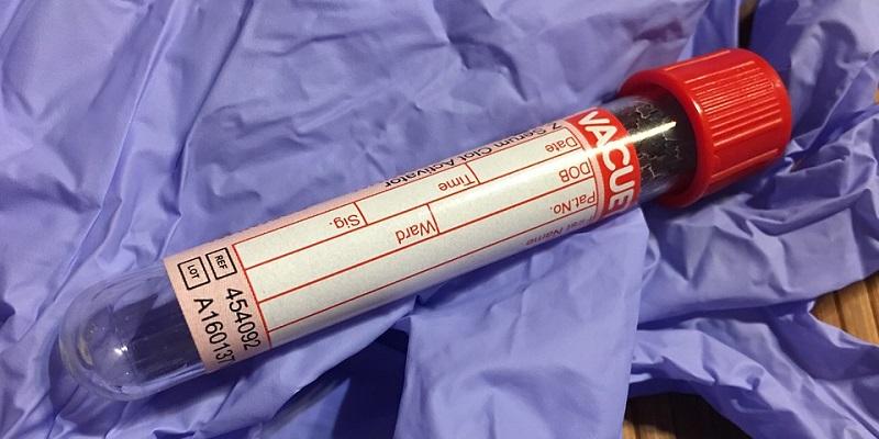 Мед. работников воронежской клиники подозревают взаражении 3-х летней пациентки гепатитом С